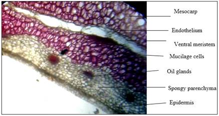 Showed transverse section of Nyctanthes arbor tristis fruit after treated with phloroglucinol- Conc. HCl (1:1)