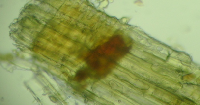 Microscopy of the heartwood of Cedrus deodara that show presence of Collenchyma Xylem parenchyma.