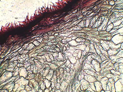 T S of the pericarp - A portion showing epidermal hairs and stone cells.