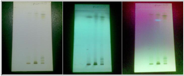 HPTLC profile of leaf extract of Pisonea aculeata